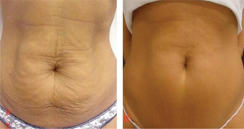 3D Lipo - Before and After Treatment